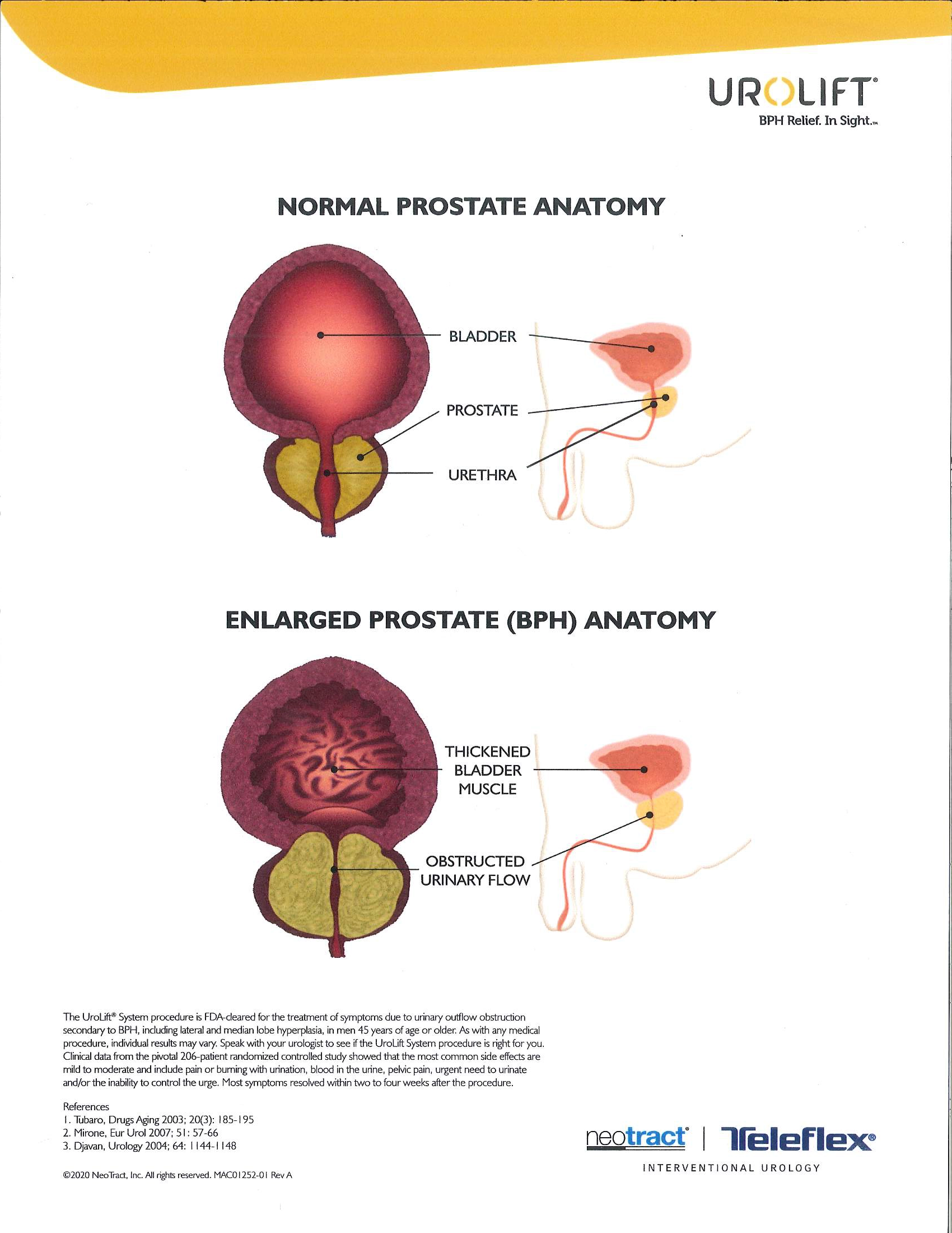 An Enlarged Prostate Causes Urinary Outflow Obstruction For Men